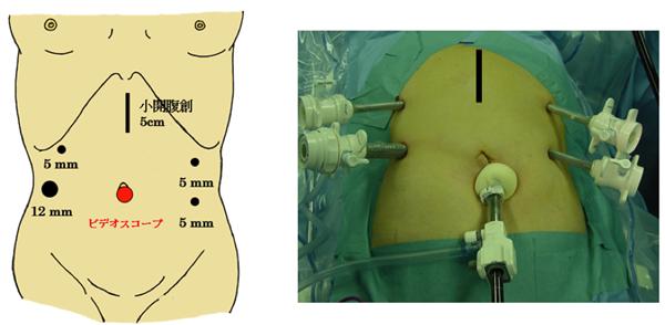 通常の腹腔鏡手術