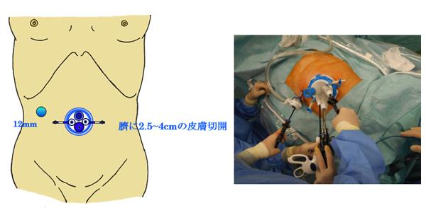 上部消化管グループで行うトロッカー数を減らした腹腔鏡手術
